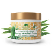 Amazing Aloe Vera Eczema & Psoriasis Cream with Manuka Honey