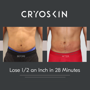 Cryoskin Slimming/Toning Session