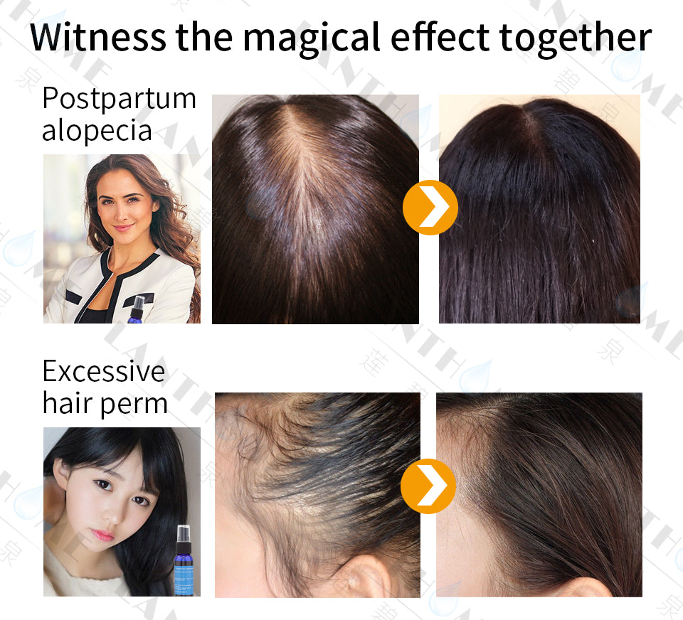 Hair Growth Escence