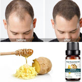 10ml Ginger Liquid Hair Growth Dense Serum Essence Hair Loss Products Natural Pure Oil Hair Care New Arrival