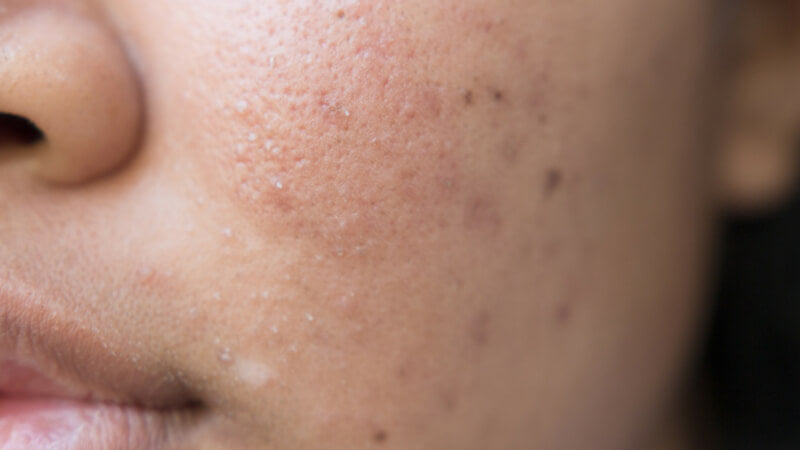 Can Collagen Help Heal Acne Scar