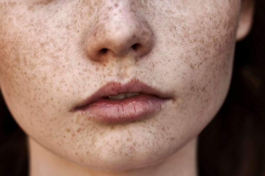 How to remove age spots naturally