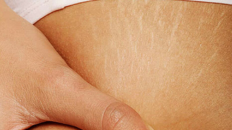 Collagen helps reduce stretch mark