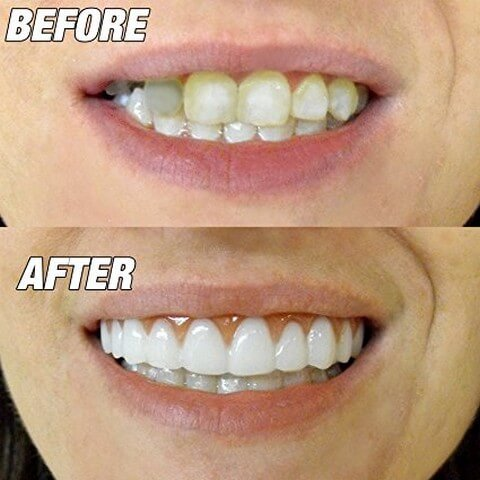 Professional Perfect Instant Smile Super Comfortable
