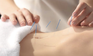 Acupuncture / Body Contouring