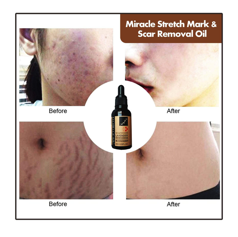 Miracle Stretch Mark & Scar Removal Oil