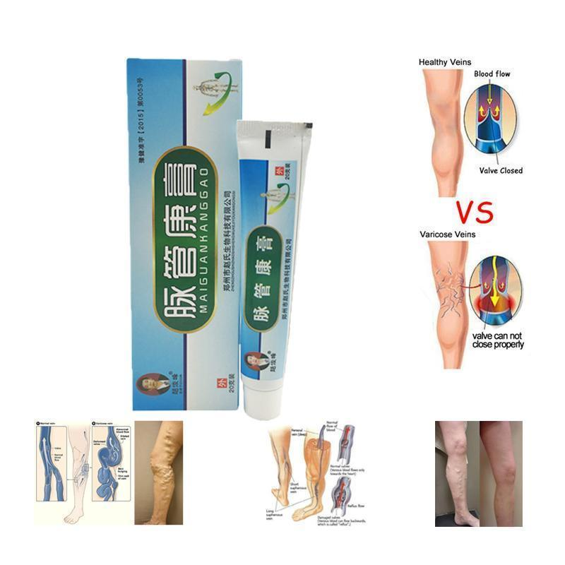 Miracle Varicose Veins Ointment