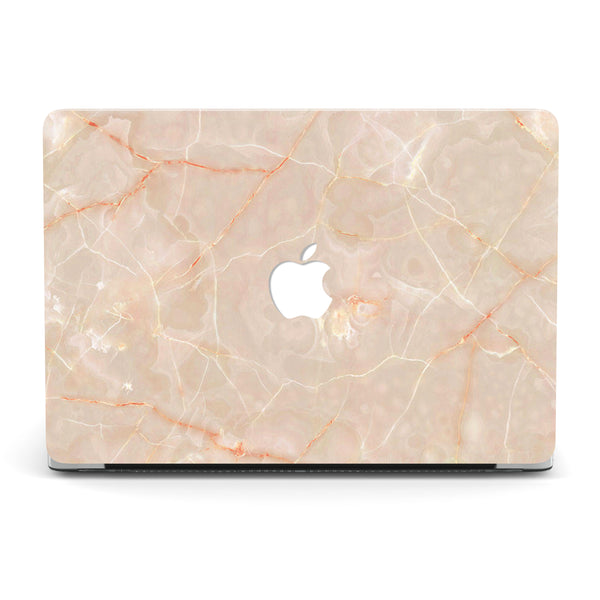 ABOUT THAT BEIGE MACBOOK CASE