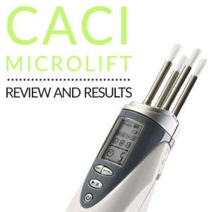 CACI Microlift Personal Facial Toning System: Review & Results