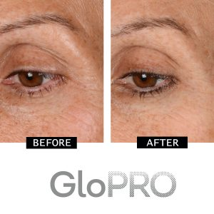 CurrentBody | GloPRO: Before & After