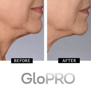 CurrentBody | GloPRO Before & After
