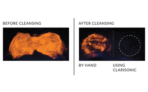 Before and after results from cleaning face with Clarisonic sonic brush versus manual cleansing