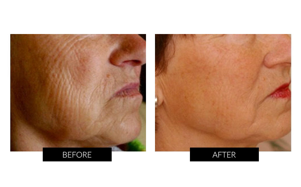 TriPollar Stop UK | Reduces Wrinkles & Tightens your Skin