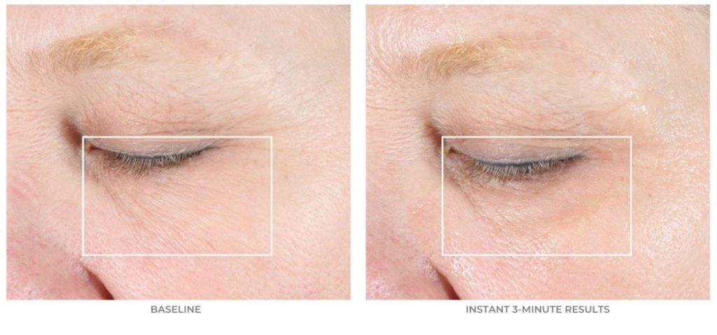 Introducing the NuFACE FIX