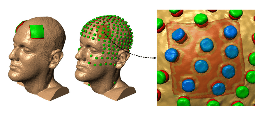 tDCS electrode placement example