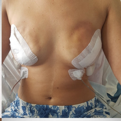 Rebecca's post breast cancer surgery photo