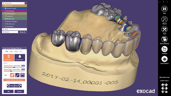 Exocad Dental CAD Software (Purchase License)
