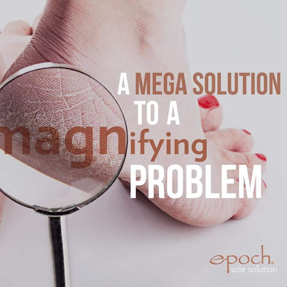 Epoch Sole Solutions