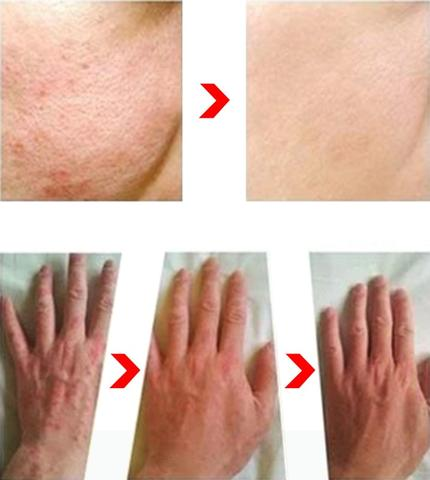 Amazing result after using the Psoriasis and Eczema Natural Herbal Cream